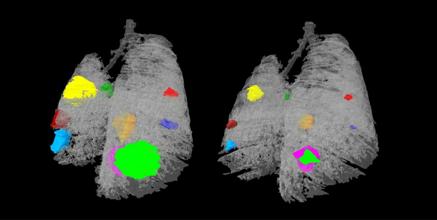 Lung Tumors after Three-Drug Combination Treatment