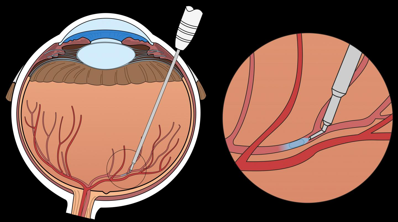Surgical Eye Robot KU Leuven / University Hospitals Leuven