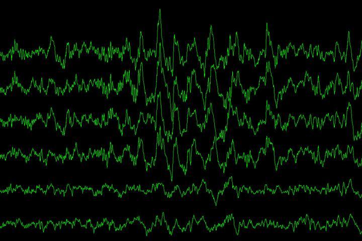 Slow-Wave Brain Waves
