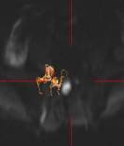 Fiber-Tracking Images of Nerve Roots