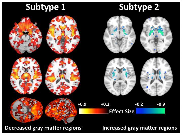 MRI Scans of Schizophrenia Subtypes