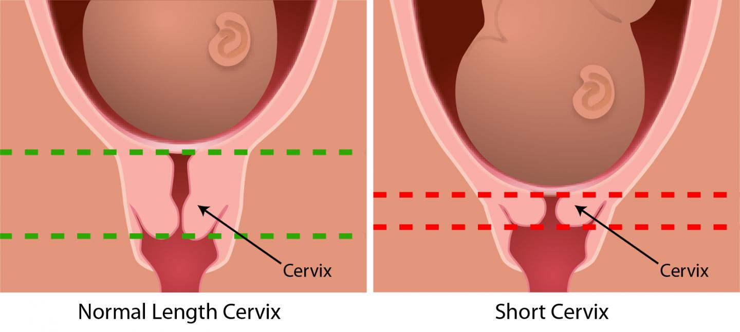 Normal and Short Cervix