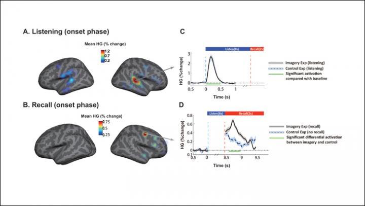 Music in the Brain