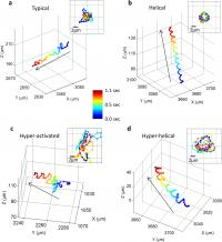 The Motion of Human Male Gamete Cells