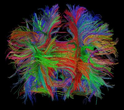Brain Connections 4 Year Old Boy