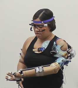Participant with advanced prosthetic arm