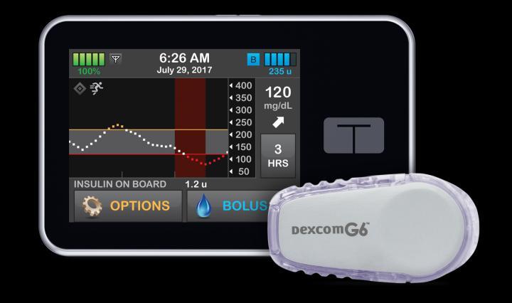 Control-IQ Artificial Pancreas System