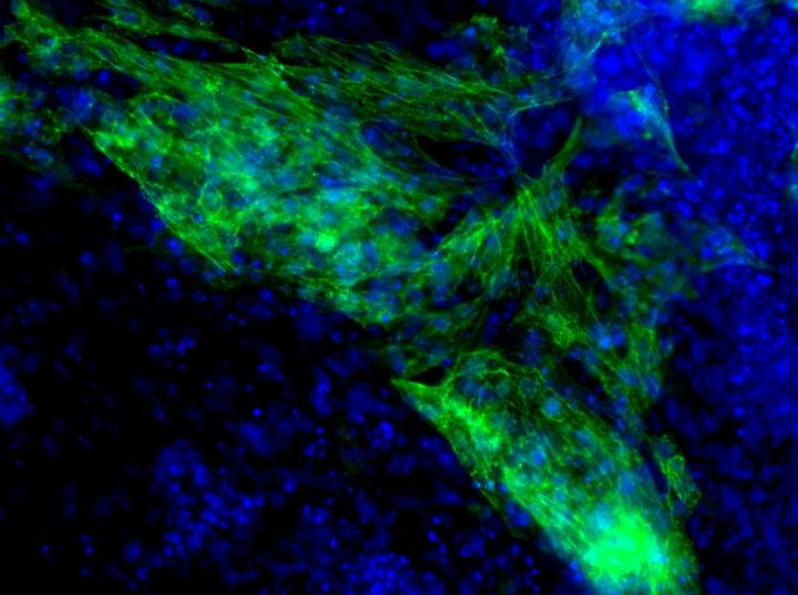 MicroRNA-Induced Heart Muscle Cell Formation
