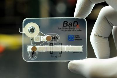 BaDx Anthrax Detector