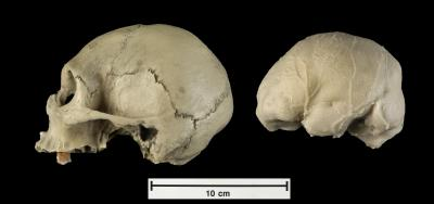 Modern Adult with Microcephaly -- Royal College of Surgeons
