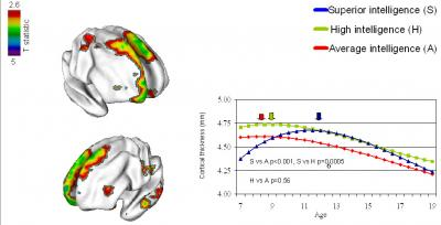 Cortex Matures Faster in Youth with Highest IQ