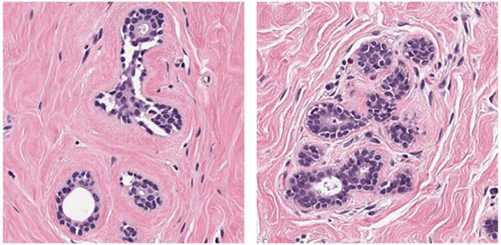 AI algorithms performed well on easier breast cancer image patches, like these.