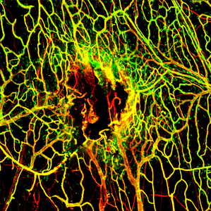 Viral Infection Slows Blood Vessel Repair After TBI
