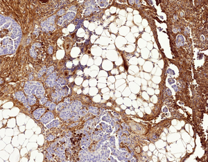 Probing the secrets of the cell to understand resistance to chemotherapy