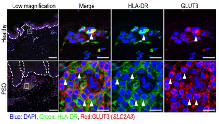 Immunofluorescence labeling of healthy and psoriatic patient skin.