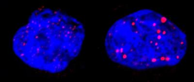 Leukemic Cells Before and After Treatment