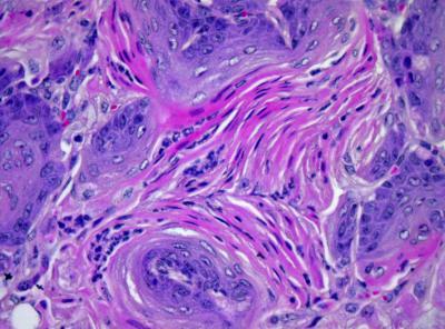 Histology of sox2/lkb1 Lung Tumors