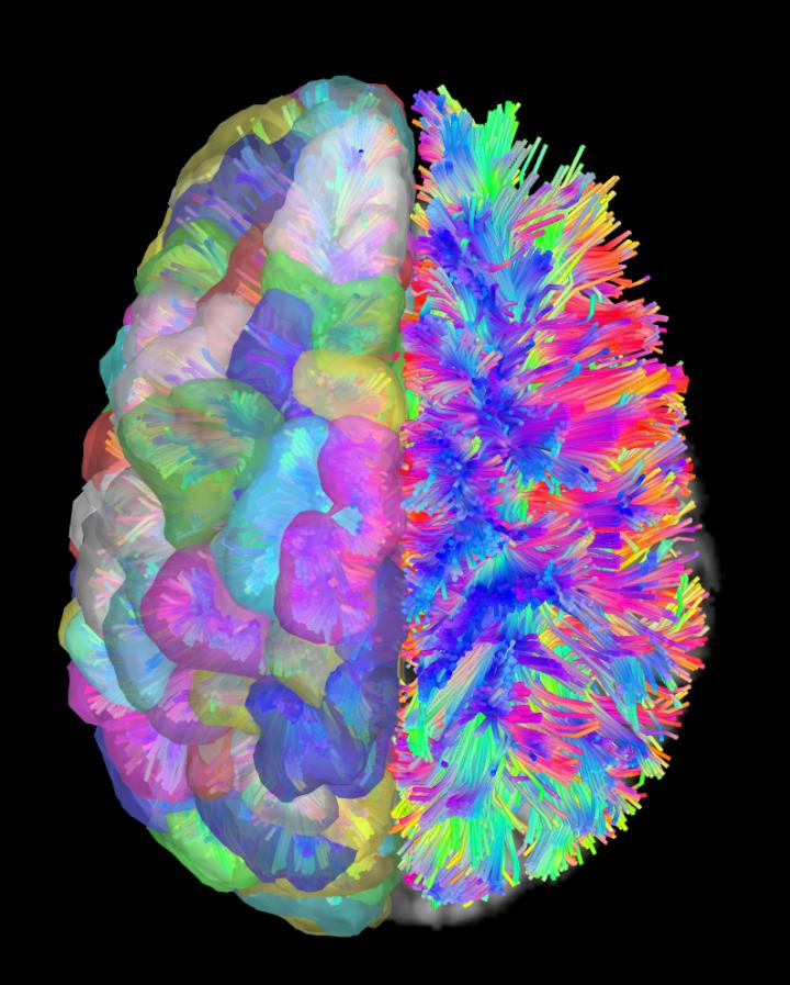 How The Brain S Wiring Leads To, Brain Wiring Diagram