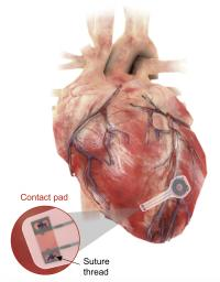 Device on heart
