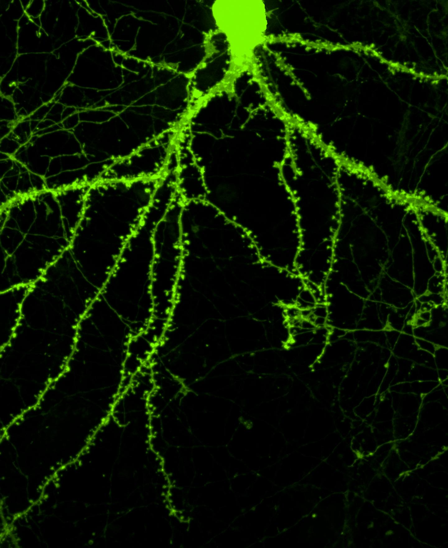 Dendritic Spines Sprout on a Treated Neuron