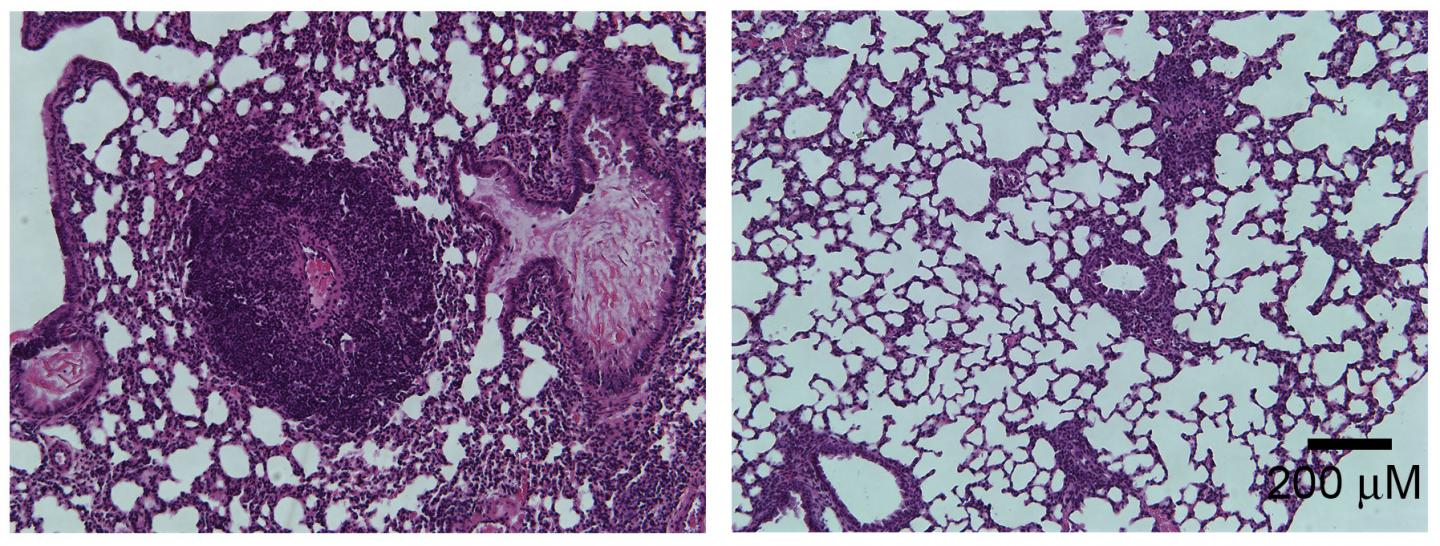 Lung Inflammation in Foxp3-mutant Mice