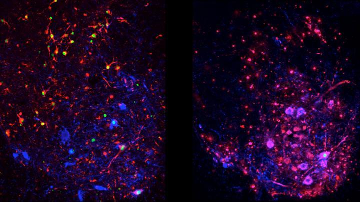 Disease Progression in Spinal Interneurons in Normal ALS Vs. Autophagy-Suppressed ALS Models