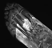 MRI image foot post-COVID