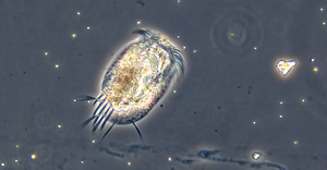 Protists such as this Euplotes are common in water, soil, even moss.