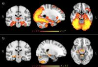 FMRI Analysis of Brain Network Activity While Carrying Out a Memory-Related Task