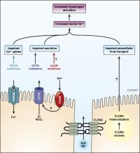 Calcium channel disorder leads to pancreatitis