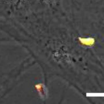 <em>Toxoplasma</em> Parasites Invading Human Cells