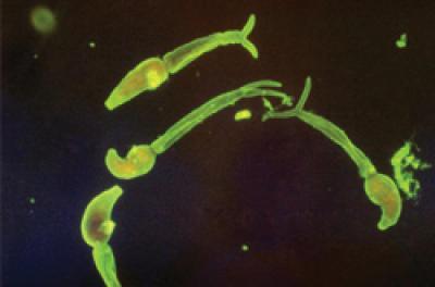 <i>Schistosoma mansoni</i>