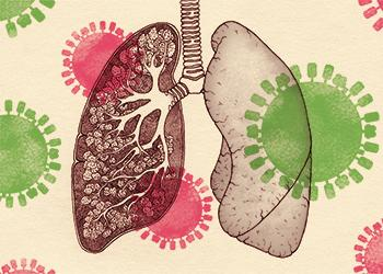 Flu damage on the lungs