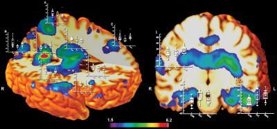 Prenatal Meth vs. Alcohol Brain Volume