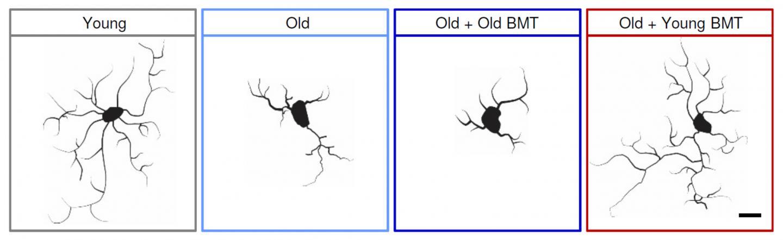 Young Bone Marrow Rejuvenates Aging Mouse Brains