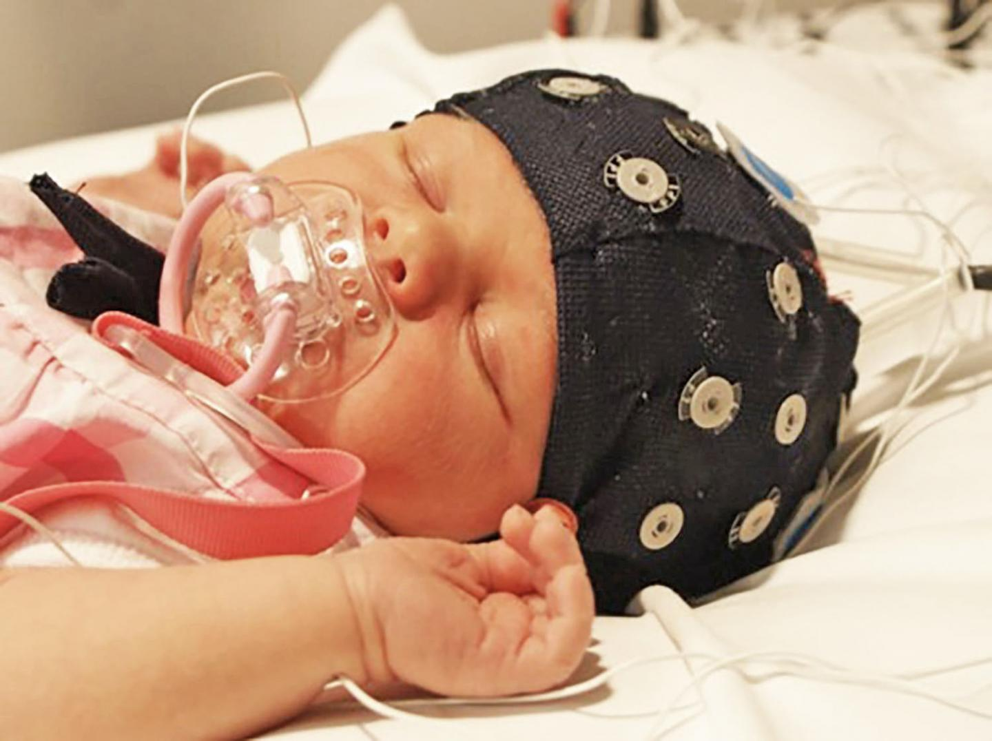 Machine Learning and Artificial Intelligence to Help Preterm Infants