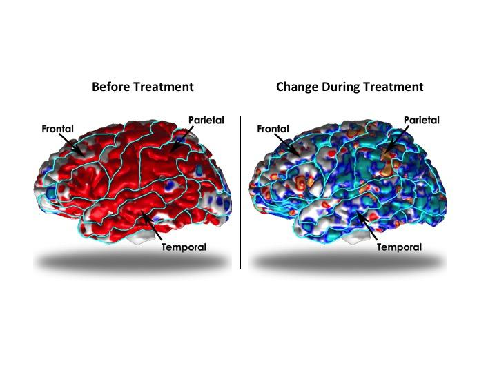 Brain Scans of Chronically Depressed Patients Before and During Treatment
