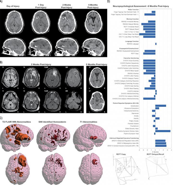 Making sense of complex brain imaging data