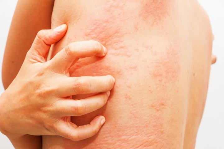 Increased Depression, Suicidal Thoughts and Stress Reported in Patients with Chronically Itchy Skin