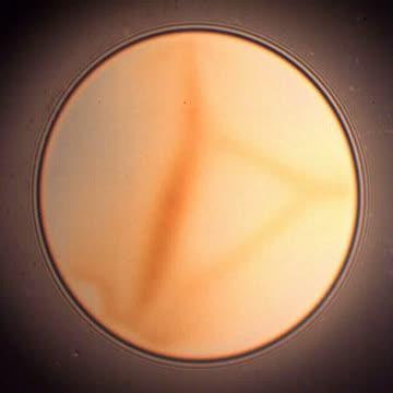 Drainage via stratification of micellar foam film