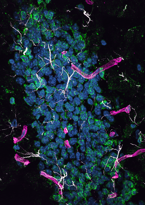 Protein from the liver may cause Alzheimer's disease in the brain
