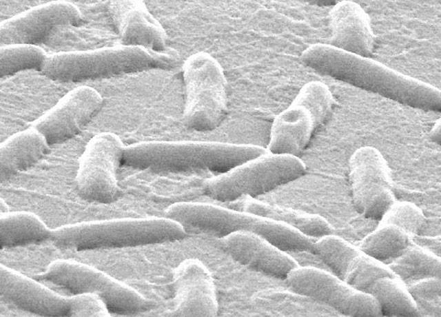 <i>Pseudomonas aeruginosa</i> on Plastic