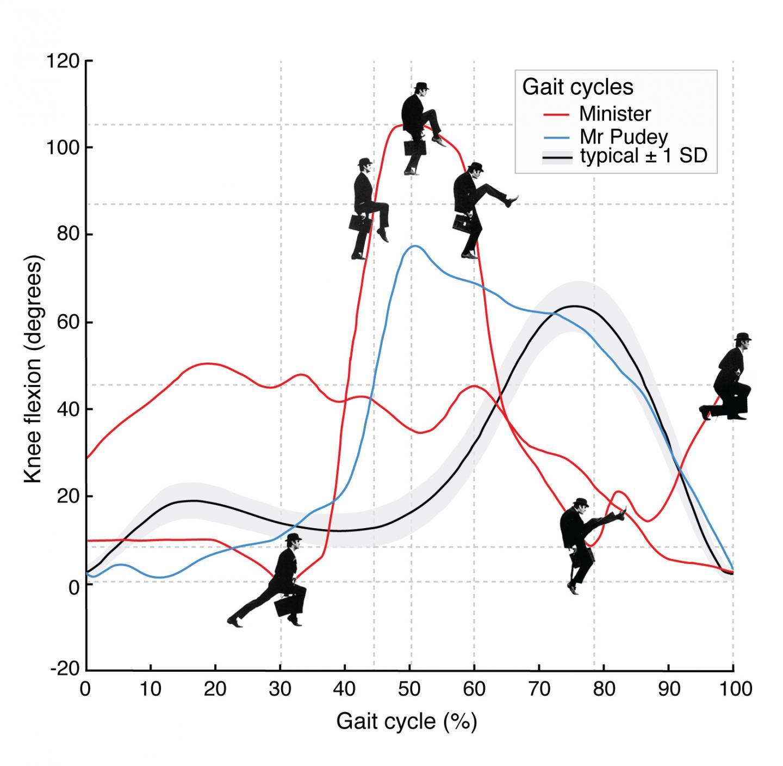 Monty Python's Silly Walk: A Gait Analysis