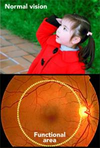 Vision of Patients with Retinitis Pigmentosa (2 of 2)