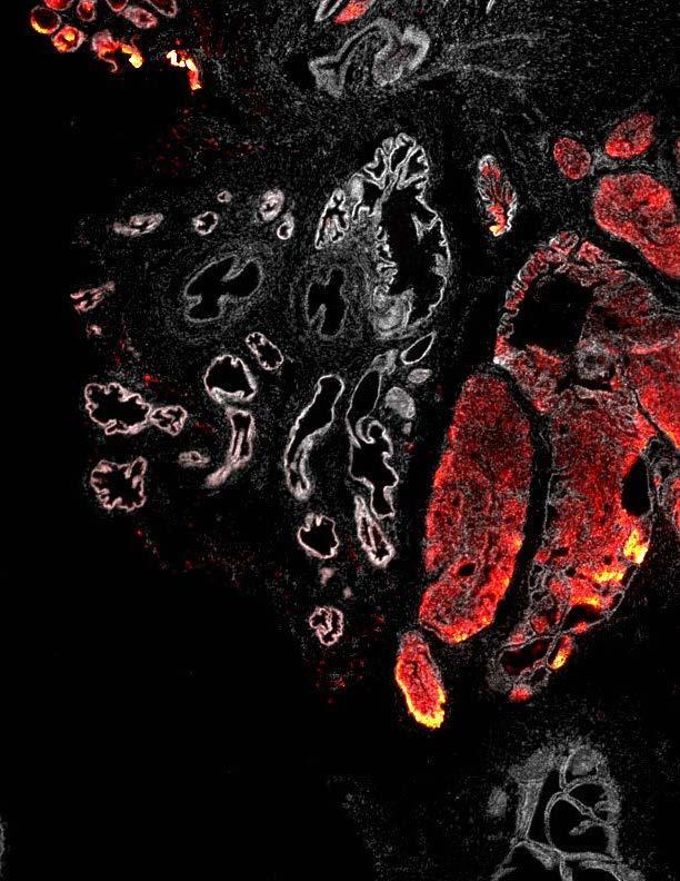 PI(3,4)P2: a New Marker for Tumor Progression