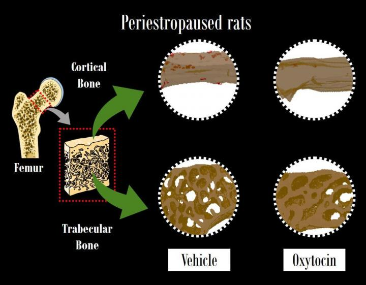 The Prevention Of Primary Osteoporosis