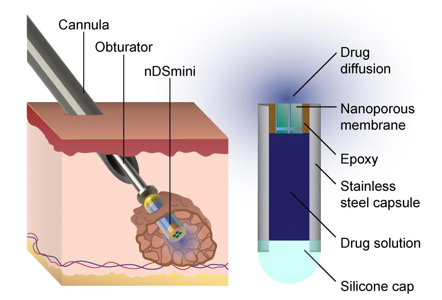 Diagram of Device