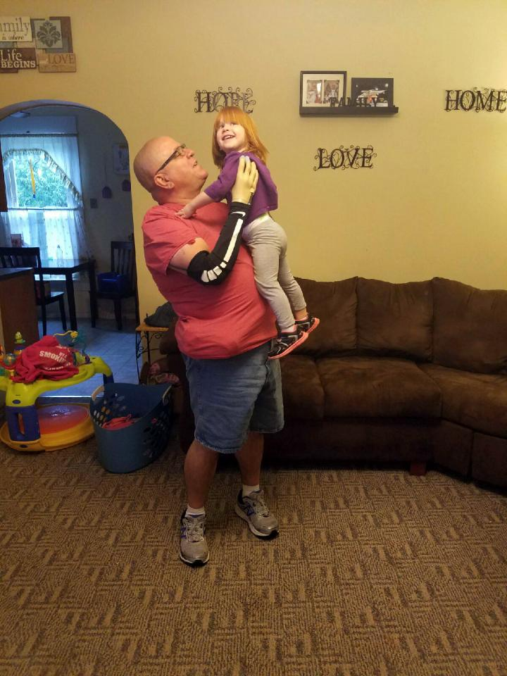 Super-Sensitive Prosthetic Allows Man to Hold Granddaughter