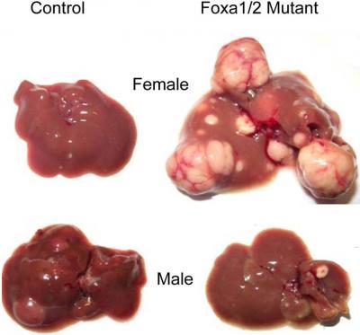 Foxa Factors Control Liver Cancer Risk
