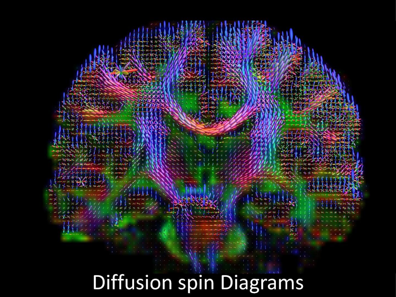 NIST's MRI Measurement Tools to Help Diagnose Veterans' Traumatic Brain Injuries